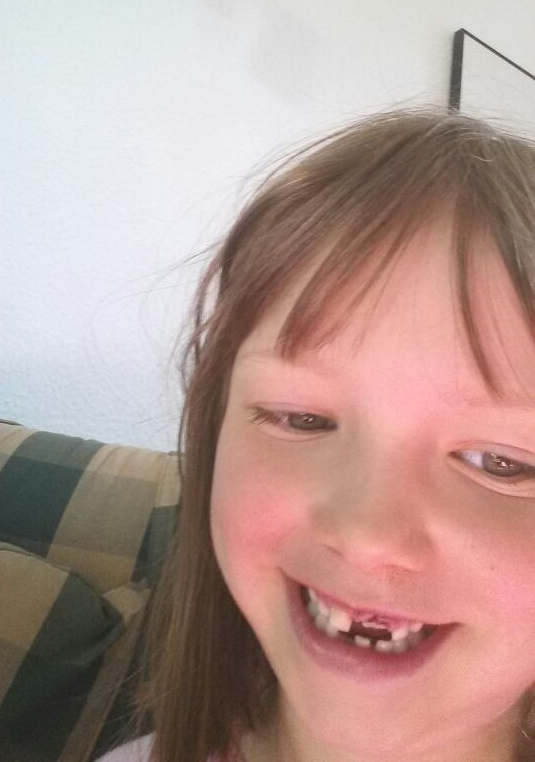 Linas Selfie ohne Zahn